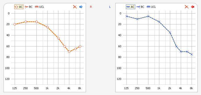 Тональная аудиограмма - правое и левое ухо, отображает уровень проводимости по воздуху.